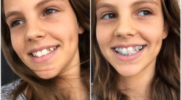 Helping Kids Adjust to Braces