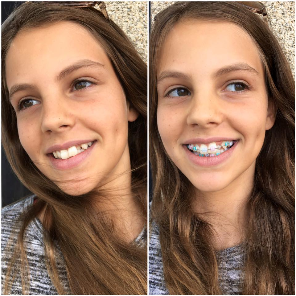Clarity™ ADVANCED Ceramic Braces
