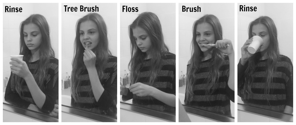 How to brush your teeth when you have braces